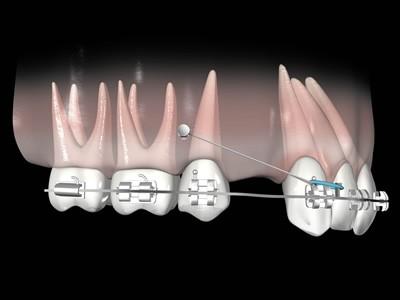 Mini-implantes