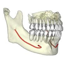 Diagnóstico em 3D