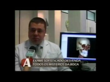 Ortodontia 3D na CNT